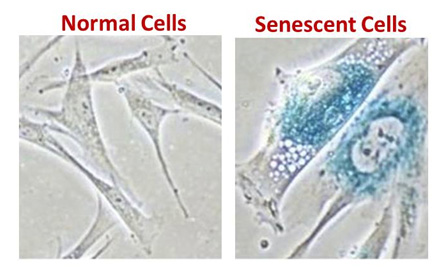senescent-cells