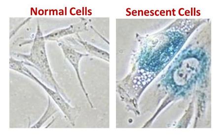 senescent-cells